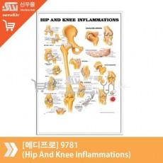 [메디프로]9781(Hip And Knee Inflammations)